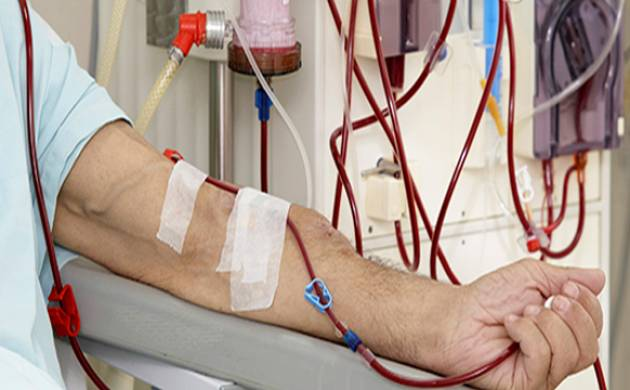 Kidney Failure Patients On Dialysis At Risk Of Dying Prematurely Study News Nation English